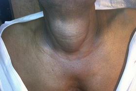 Увеличение размеров щитовидки на фото