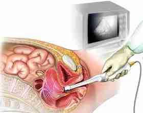 UZI organov moshonki