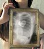 УЗИ органов грудной клетки