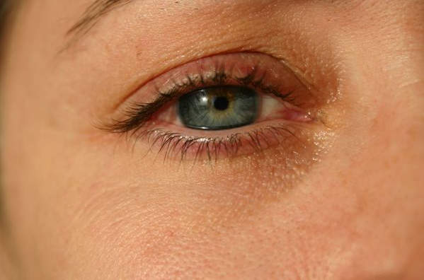 Как исследуют глаза на УЗИ