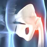 Ультразвуковая диагностика заболеваний тазобедренного сустава
