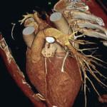 Полнейшая инструкция по прохождению эхокардиографии сердца