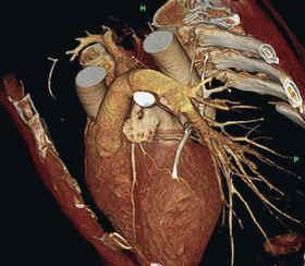 Сердце - важнейший орган человека