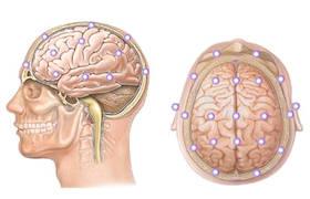 Исследование мозга головы