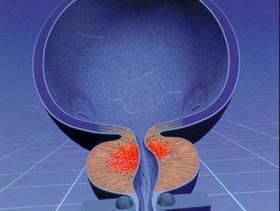 Подготовка к узи предстательной железы