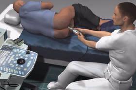 Как удалить кисту предстательной железы