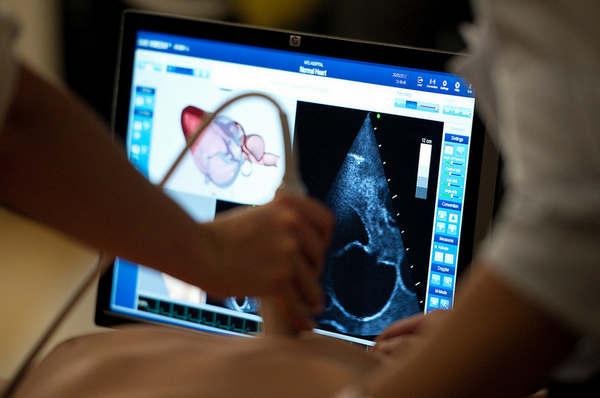 Процедура уз-обследования мочевого пузыря