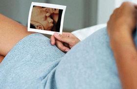 Нормы 3 УЗИ беременных