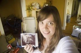 Женщина со снимком уз-диагностики
