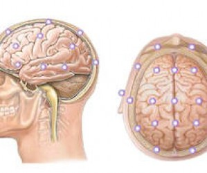 Эхоэнцефалография головного мозга: вся информация об исследовании