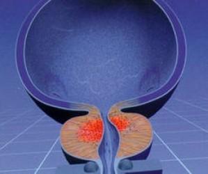 Как правильно подготовиться к УЗИ предстательной железы